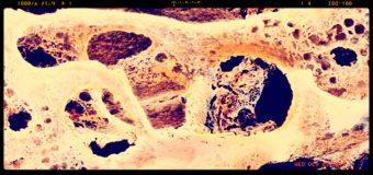 Osteoporsi, il 50% dei pazienti non aderisce alla terapia