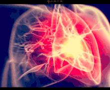 Terapia post-infarto, l'impiego di Doac può prevenire nuovi eventi trombotici