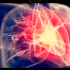 cuore attacco 760