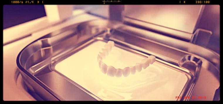 Ricerca, denti prodotti con stampanti 3D nuova frontiera contro le infezioni orali