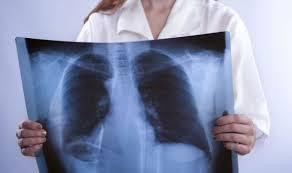 Eurostat: 13 decessi su 100 nella Ue dovuti a malattie respiratorie