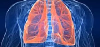 """Simit. """"Torna il rischio polmonite, 50mila contagi all'anno, soprattutto in ospedale"""""""