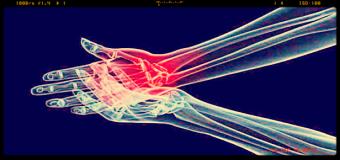 Artrite reumatoide, scoperte in Italia tre nuove molecole, sul mercato tra 9 anni