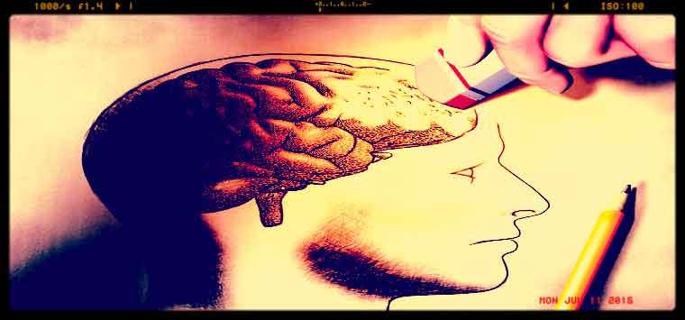 Alzheimer, fallita la sperimentazione di Sola: era il farmaco più promettente