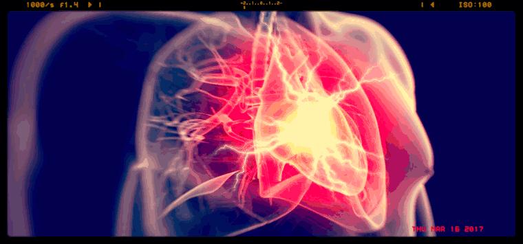 Fans e infarto, uno studio canadese rilancia l'ipotesi di un possibile legame