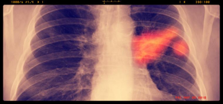 Tumore al polmone, si punta a terapie  senza chemio in 4 pazienti su 10