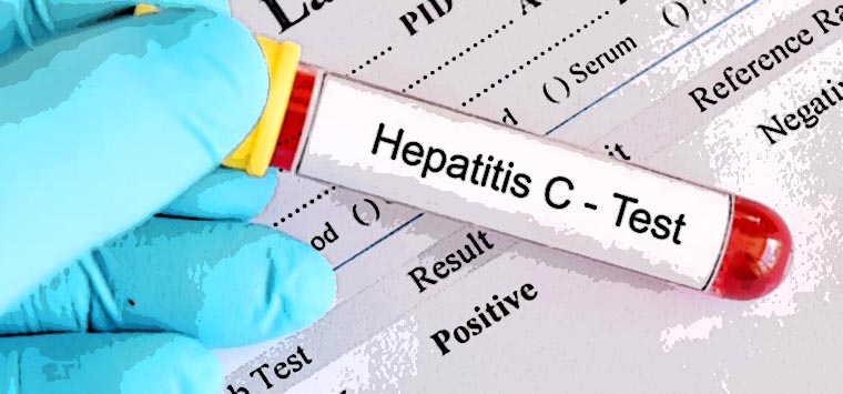 Epatite C, per l'obiettivo eradicazione anche un tavolo di lavoro in Aifa