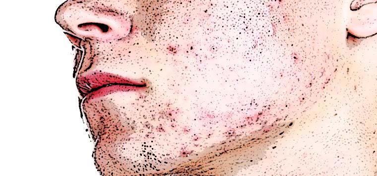 Isotretinoina, torna l'allarme sul farmaco antiacne che indurrebbe al suicidio
