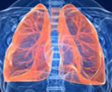 Studio internazionale conferma efficacia baricitinib contro polmoniti da Covid