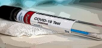 Ministero Salute, firmata la circolare che ammette i test antigenici rapidi
