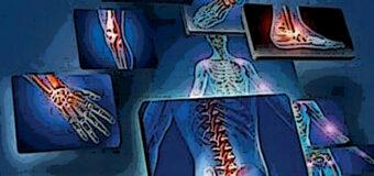 """Malattie infiammatorie croniche, Sifo aderisce alla campagna """"Passione Accesa"""""""