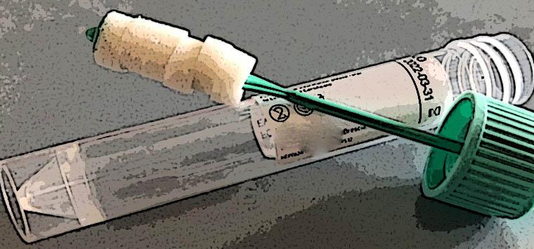 """Fofi: """"Test salivari rapidi effettuabili in farmacia non validi per il green pass"""""""